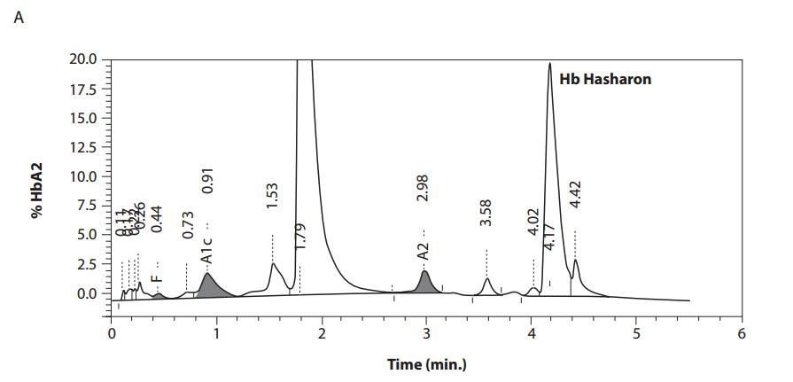 Hemoglobin Hasharon and Hemoglobin NYU in subjects of German